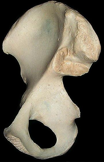 pelvic bones in whales are an example of