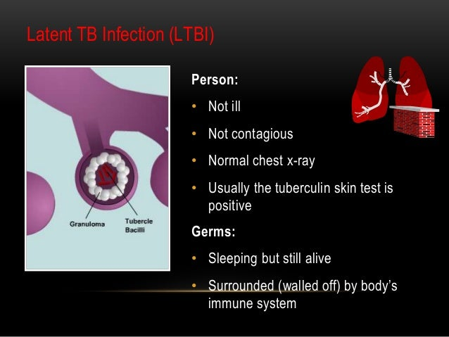 a positive tuberculin skin test is an example of